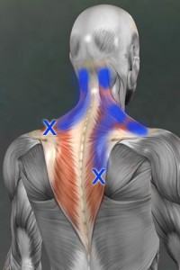 neck trigger points