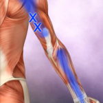 Bl 1 Triceps 1 trp