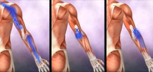 Bl 2  Triceps trp